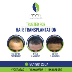 Best hair transplant | Hair loss treatment | Hair loss cure